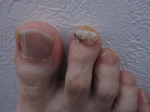血腫 爪 下